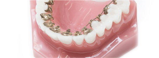 矯正歯科イメージ