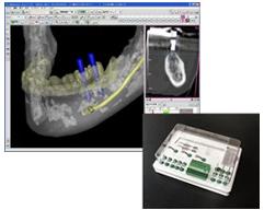 インプラント手術支援システム「LANDMARK SYSTEM」