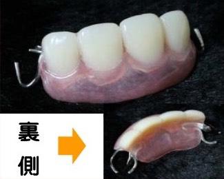 入れ歯(プラスチック床)