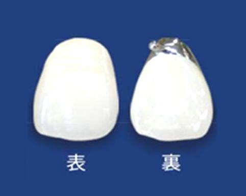メタルセラミック(床義歯)
