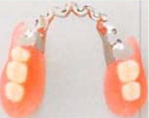 属床+ノンクラスプハイブリッド義歯