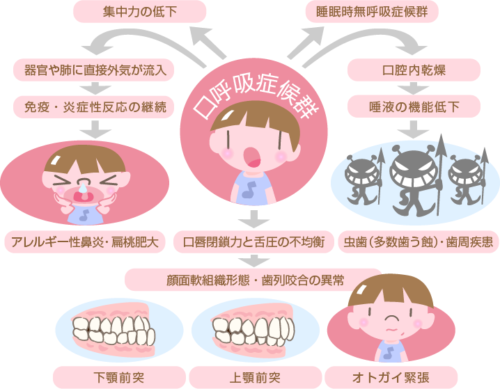 口呼吸症候群のデメリット