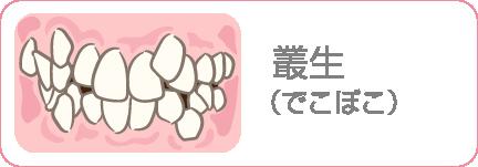 叢生(でこぼこ)