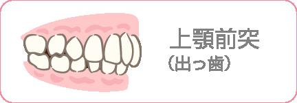 上顎前突(でっぱ)