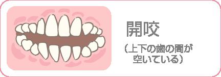 開咬(上下の歯の間が空いている)